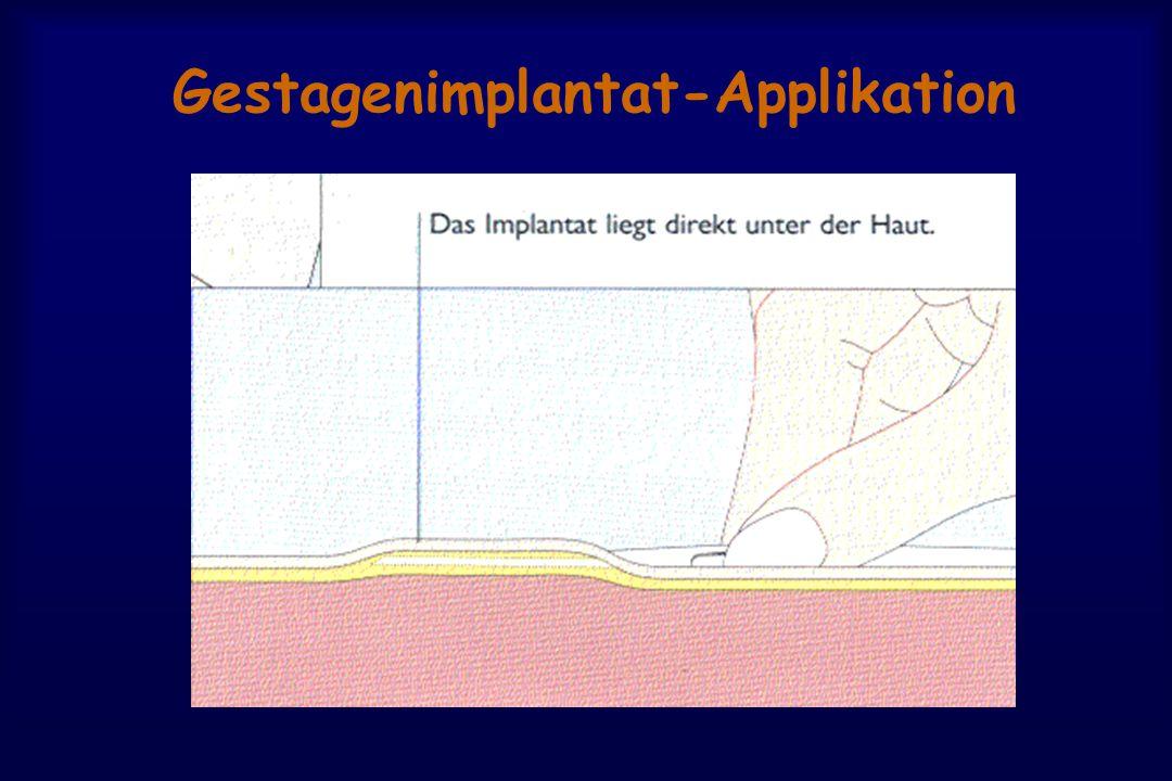 Gestagenimplantat-Applikation