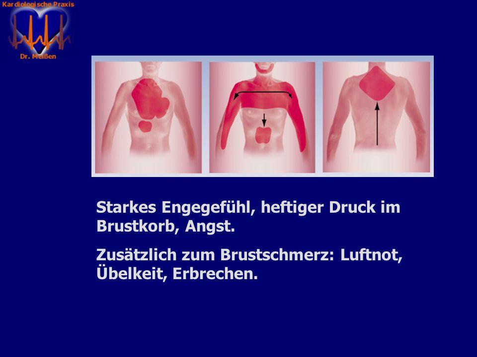 Schwere, länger als fünf Minuten anhaltende Schmerzen im Brustkorb, die in Arme, Schulterblätter, Hals, Kiefer, Oberbauch ausstrahlen können.
