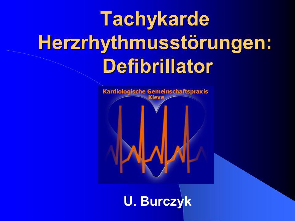 Tachykarde Herzrhythmusstörungen: Defibrillator U. Burczyk