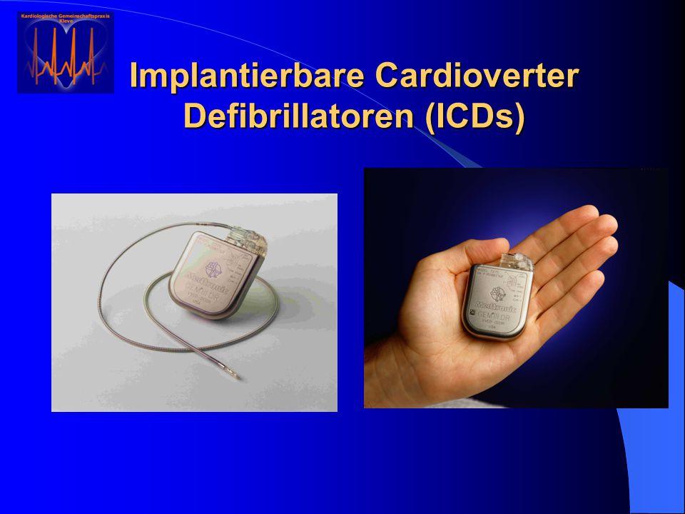 Implantierbare Cardioverter Defibrillatoren (ICDs)