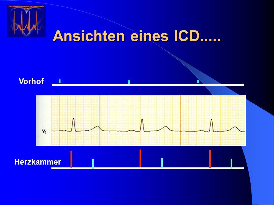 Ansichten eines ICD..... Herzkammer Vorhof
