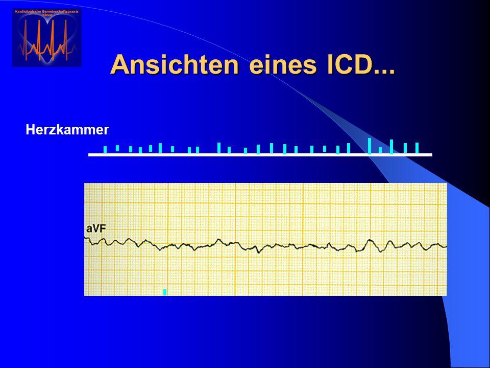 Ansichten eines ICD... Herzkammer