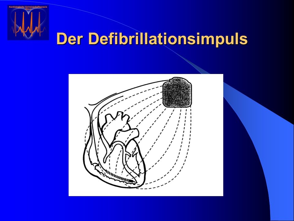 Der Defibrillationsimpuls