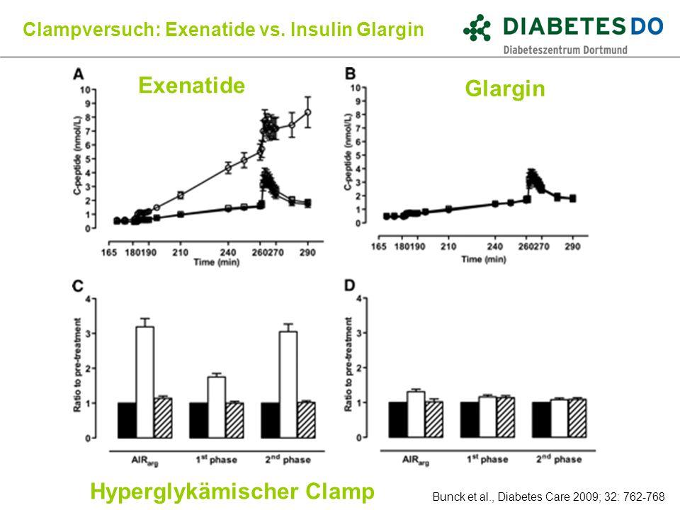 Bunck et al., Diabetes Care 2009; 32: 762-768 Clampversuch: Exenatide vs. Insulin Glargin Exenatide Glargin Hyperglykämischer Clamp