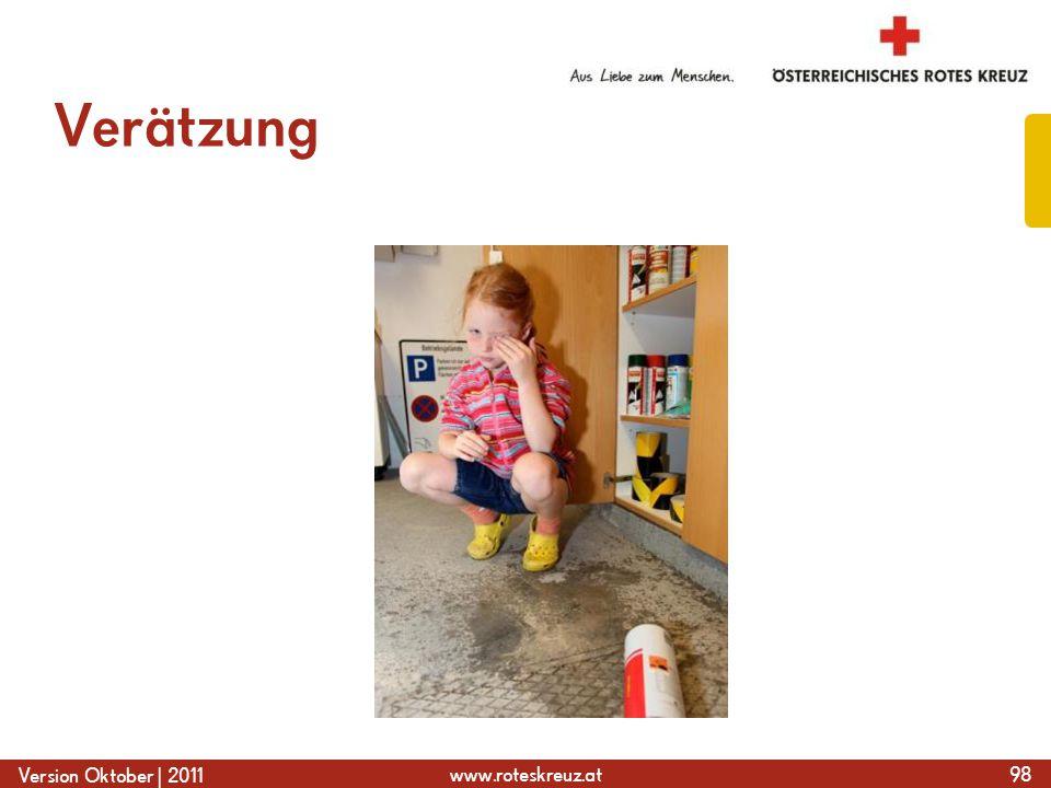 www.roteskreuz.at Version Oktober | 2011 Verätzung 98