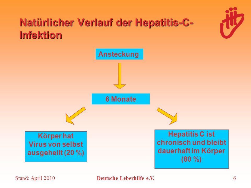 Stand: April 2010Deutsche Leberhilfe e.V.6 Natürlicher Verlauf der Hepatitis-C- Infektion Ansteckung 6 Monate Körper hat Virus von selbst ausgeheilt (