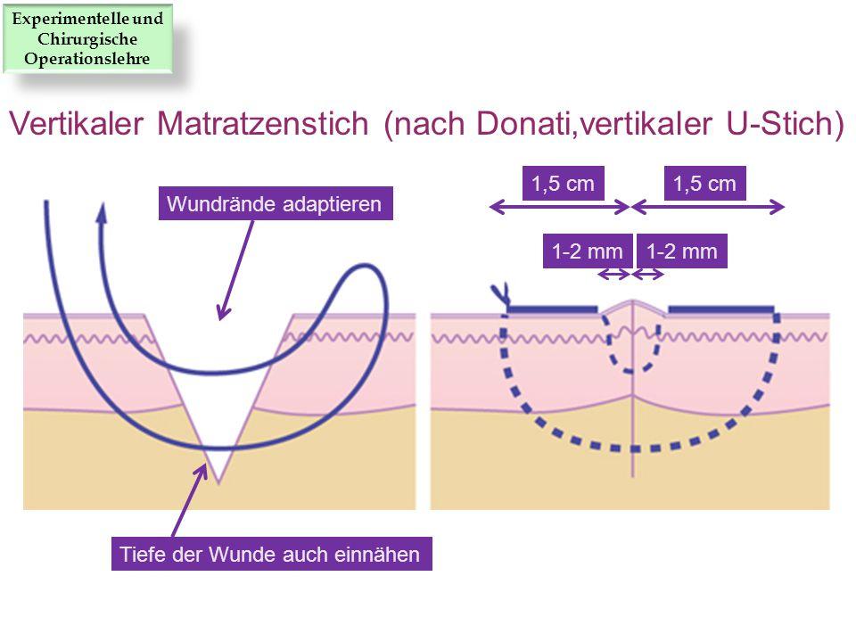 1,5 cm 1-2 mm Tiefe der Wunde auch einnähen Wundrände adaptieren Vertikaler Matratzenstich (nach Donati,vertikaler U-Stich) Experimentelle und Chirurg