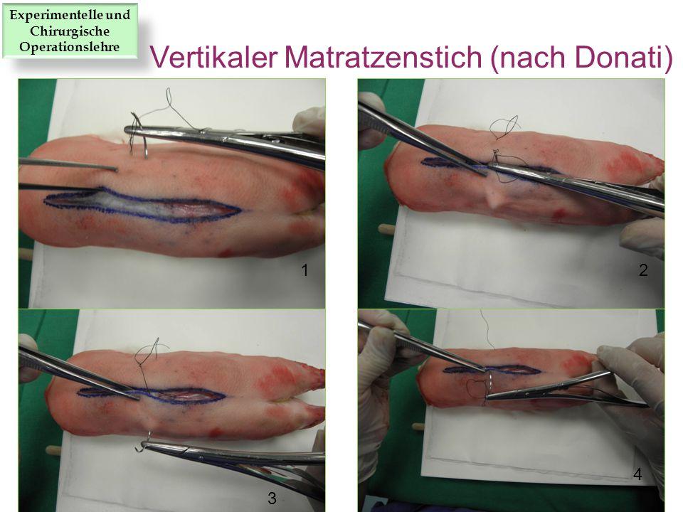12 3 4 Vertikaler Matratzenstich (nach Donati) Experimentelle und Chirurgische Operationslehre