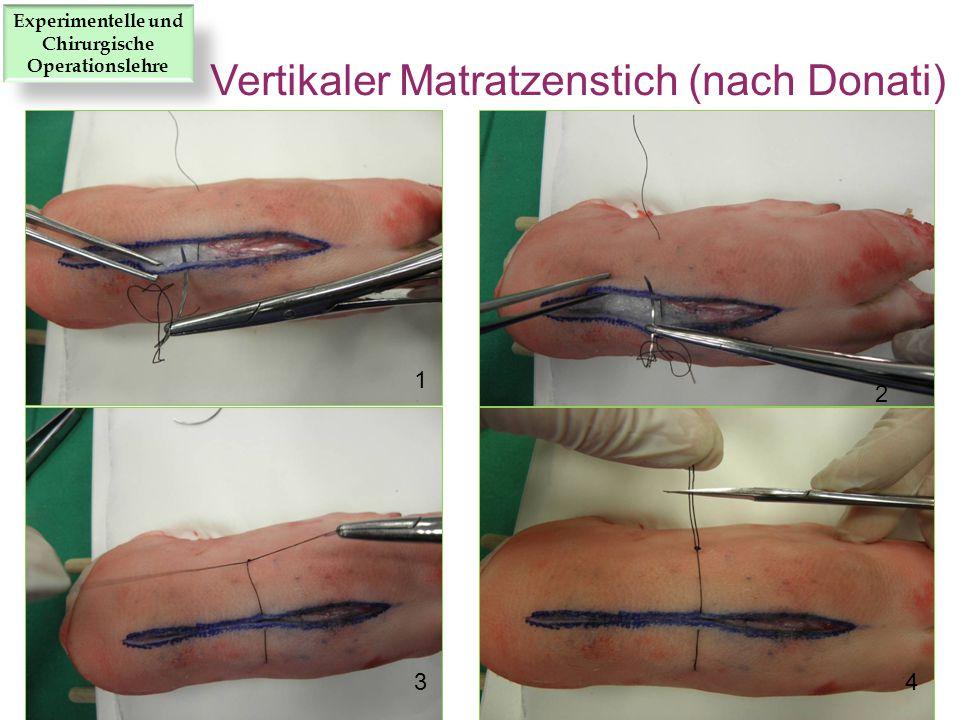 1 2 34 Vertikaler Matratzenstich (nach Donati) Experimentelle und Chirurgische Operationslehre