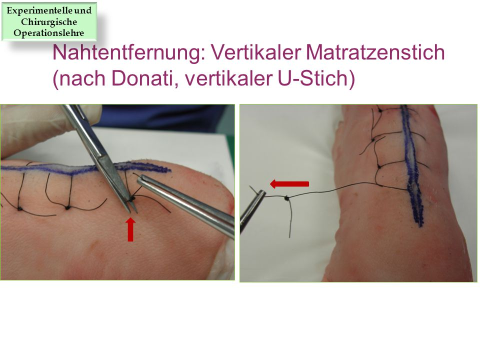Nahtentfernung: Vertikaler Matratzenstich (nach Donati, vertikaler U-Stich) Experimentelle und Chirurgische Operationslehre