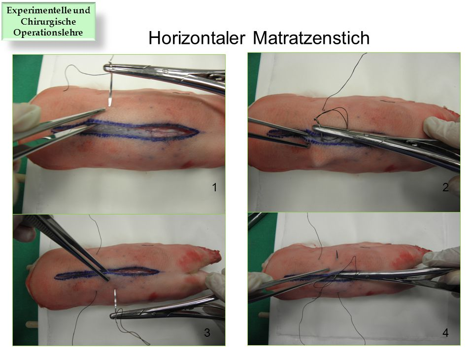 12 34 Horizontaler Matratzenstich Experimentelle und Chirurgische Operationslehre