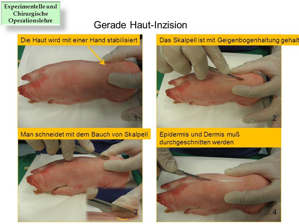 Die Haut wird mit einer Hand stabilisiertDas Skalpell ist mit Geigenbogenhaltung gehalten Man schneidet mit dem Bauch von SkalpellEpidermis und Dermis