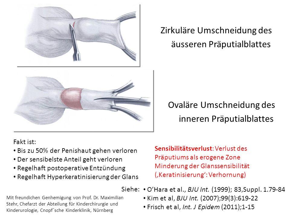 Ovaläre Umschneidung des inneren Präputialblattes Zirkuläre Umschneidung des äusseren Präputialblattes Fakt ist: Bis zu 50% der Penishaut gehen verlor