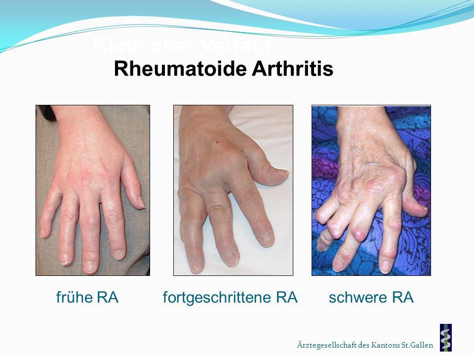 Ärztegesellschaft des Kantons St.Gallen Rheumatoide Arthritis Klinischer Verlauf frühe RAfortgeschrittene RAschwere RA