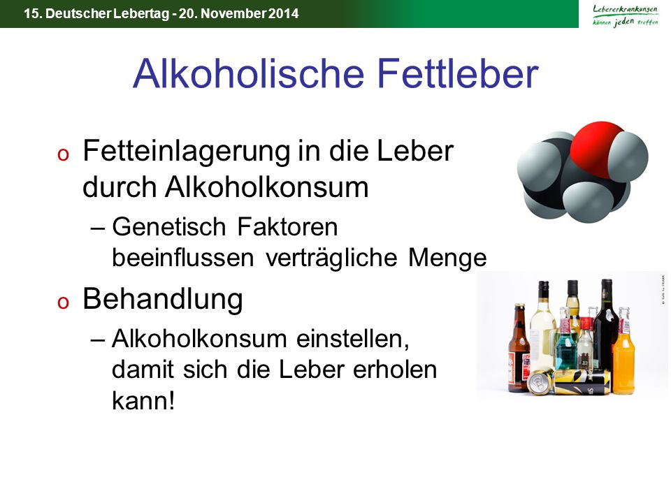 15. Deutscher Lebertag - 20. November 2014 Alkoholische Fettleber o Fetteinlagerung in die Leber durch Alkoholkonsum –Genetisch Faktoren beeinflussen
