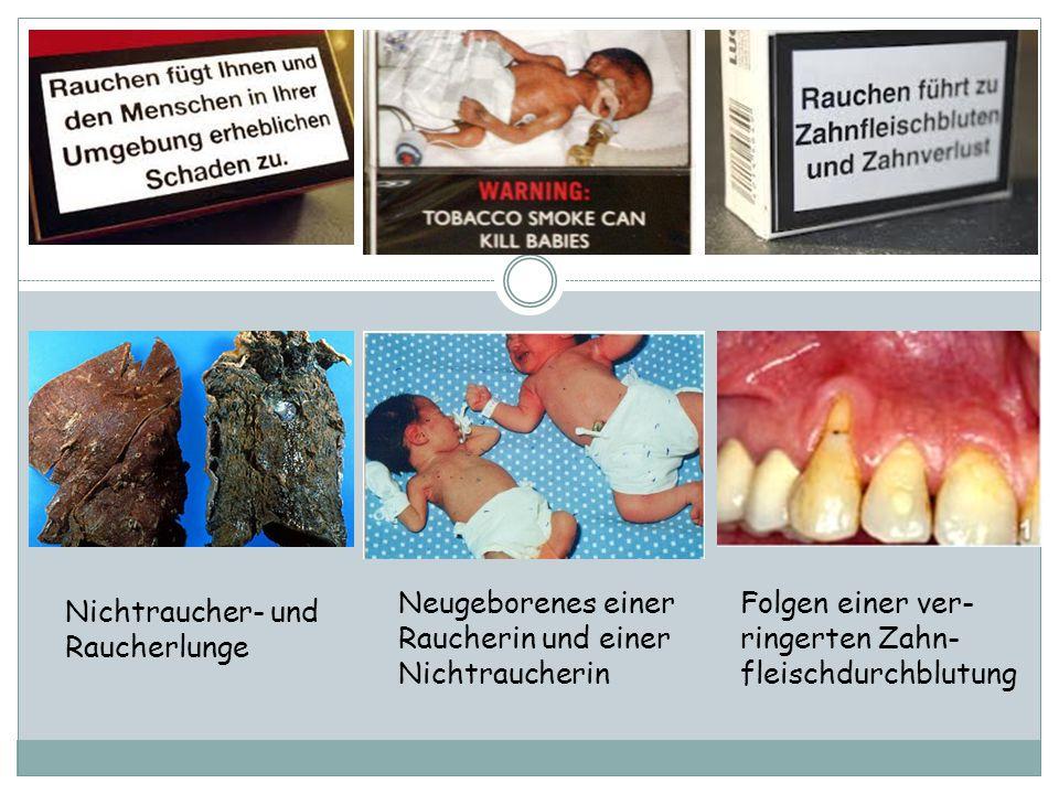 Nichtraucher- und Raucherlunge Neugeborenes einer Raucherin und einer Nichtraucherin Folgen einer ver- ringerten Zahn- fleischdurchblutung