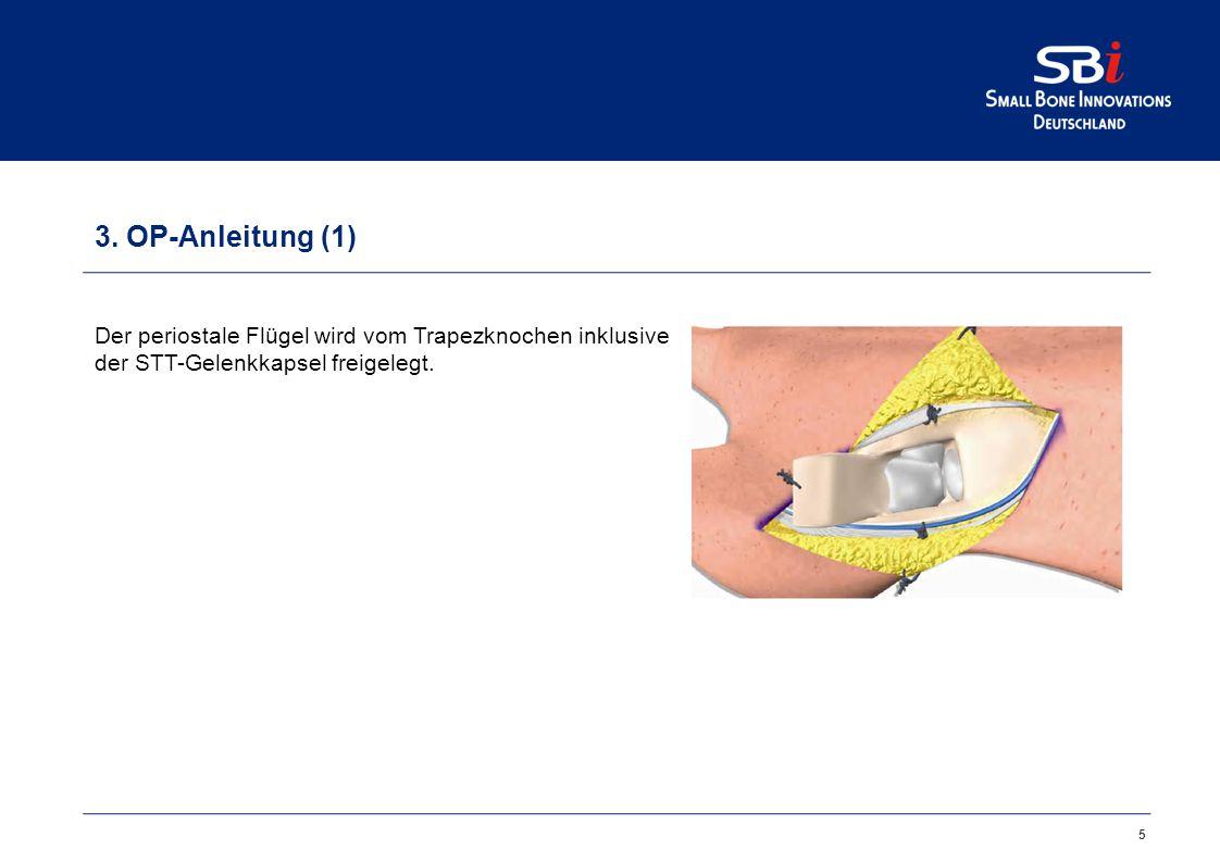 5 3. OP-Anleitung (1) Der periostale Flügel wird vom Trapezknochen inklusive der STT-Gelenkkapsel freigelegt.