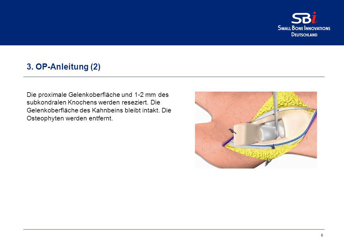 6 3. OP-Anleitung (2) Die proximale Gelenkoberfläche und 1-2 mm des subkondralen Knochens werden reseziert. Die Gelenkoberfläche des Kahnbeins bleibt