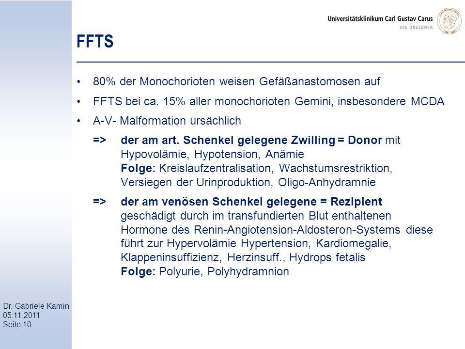 Dr. Gabriele Kamin 05.11.2011 Seite 10 FFTS 80% der Monochorioten weisen Gefäßanastomosen auf FFTS bei ca. 15% aller monochorioten Gemini, insbesonder