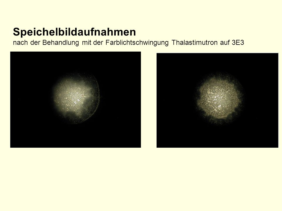 Speichelbildaufnahmen nach der Behandlung mit der Farblichtschwingung Thalastimutron auf 3E3