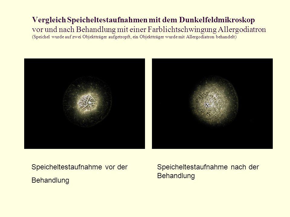 Vergleich Speicheltestaufnahmen mit dem Dunkelfeldmikroskop vor und nach Behandlung mit einer Farblichtschwingung Allergodiatron (Speichel wurde auf z