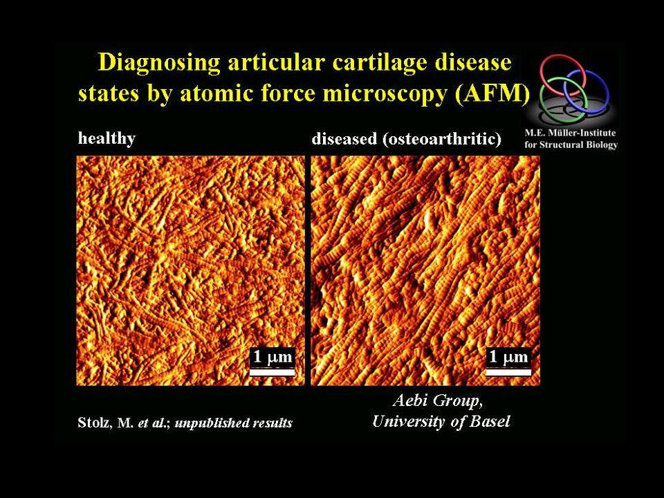 arthroscopic AFM Design of an arthroscopic AFM  2.5 mm inflatable balloons piezo tube R.