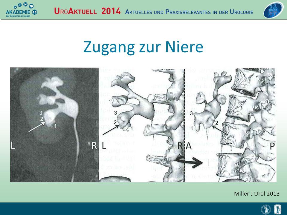 Zugang zur Niere Miller J Urol 2013