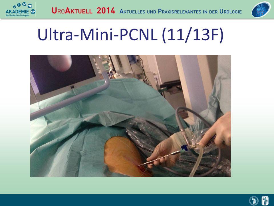 Ultra-Mini-PCNL (11/13F)