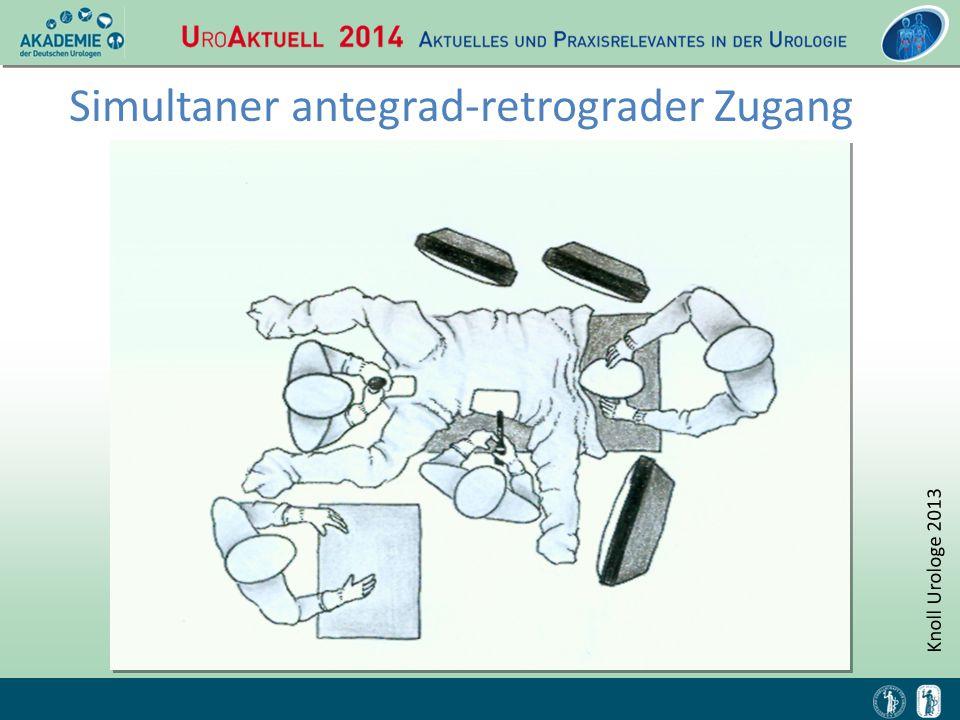 Simultaner antegrad-retrograder Zugang Knoll Urologe 2013