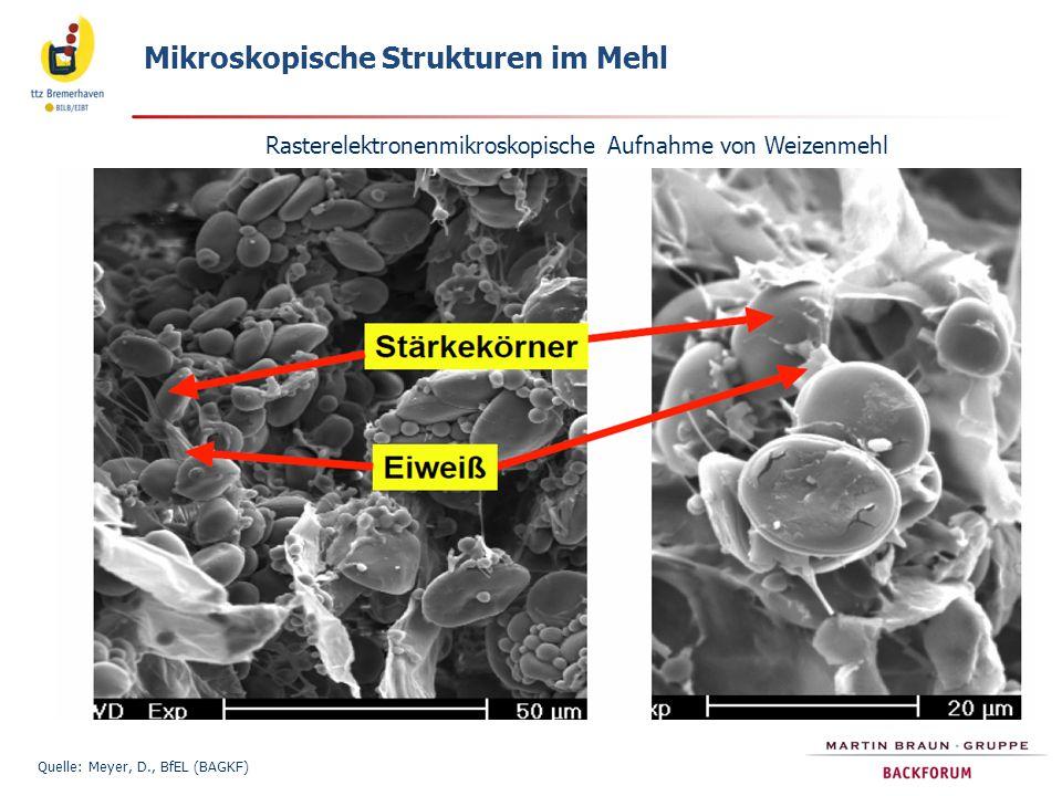Mikroskopische Strukturen im Mehl Quelle: Meyer, D., BfEL (BAGKF) Rasterelektronenmikroskopische Aufnahme von Weizenmehl