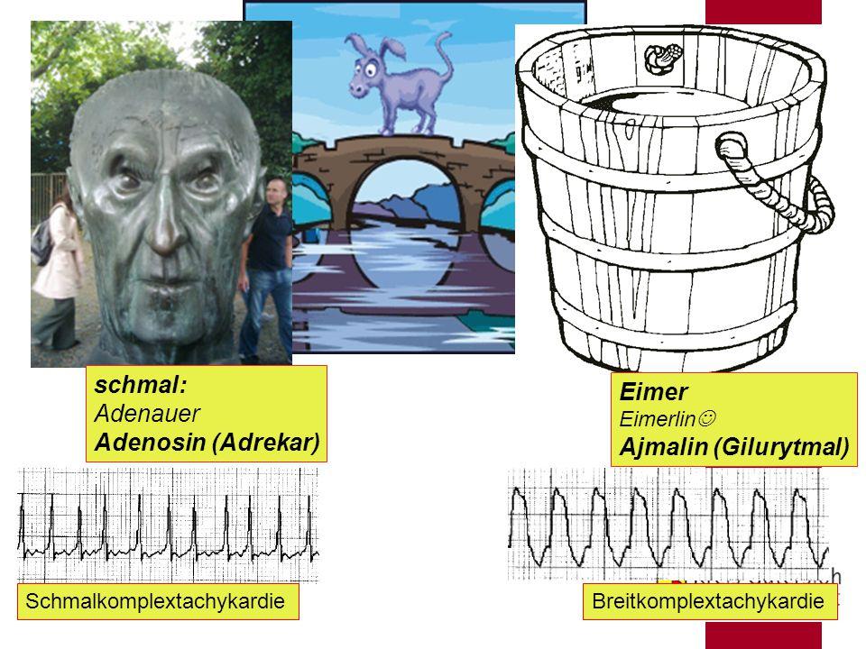 ÄLRD schmal: Adenauer Adenosin (Adrekar) Eimer Eimerlin Ajmalin (Gilurytmal) SchmalkomplextachykardieBreitkomplextachykardie