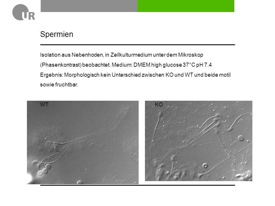 OPTN KO Mäuse 6 Monate alt: Axonanzahl und Retinadicke (noch nicht fertig) sowie Elektronenmikroskopie (deshalb haben wir perfundiert)