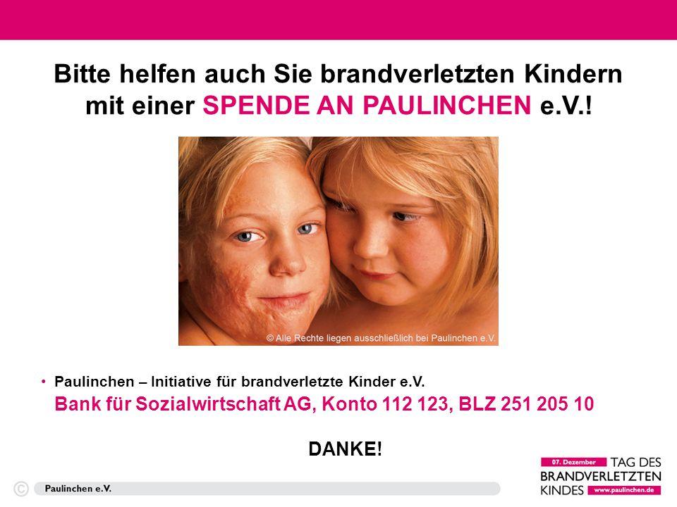 Machen Sie mit! www.paulinchen.de www.tag-des-brandverletzten-kindes.de E-Mail: TDBK@paulinchen.deTDBK@paulinchen.de Weitere Informationen unter: