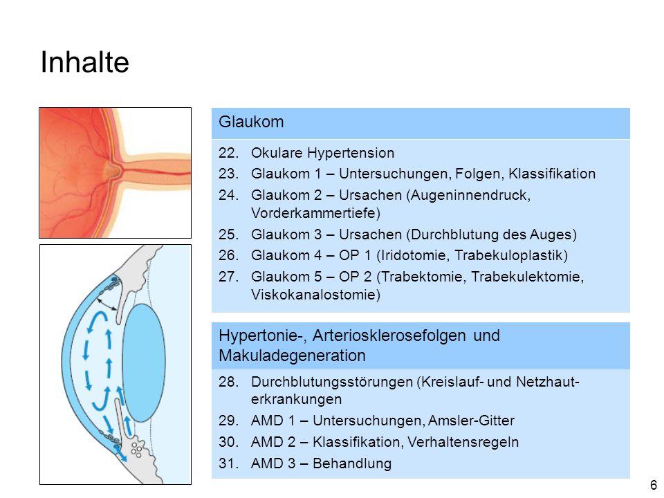 6 Inhalte Glaukom 22.Okulare Hypertension 23.Glaukom 1 – Untersuchungen, Folgen, Klassifikation 24.Glaukom 2 – Ursachen (Augeninnendruck, Vorderkammer