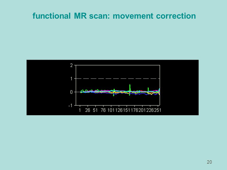 20 functional MR scan: movement correction