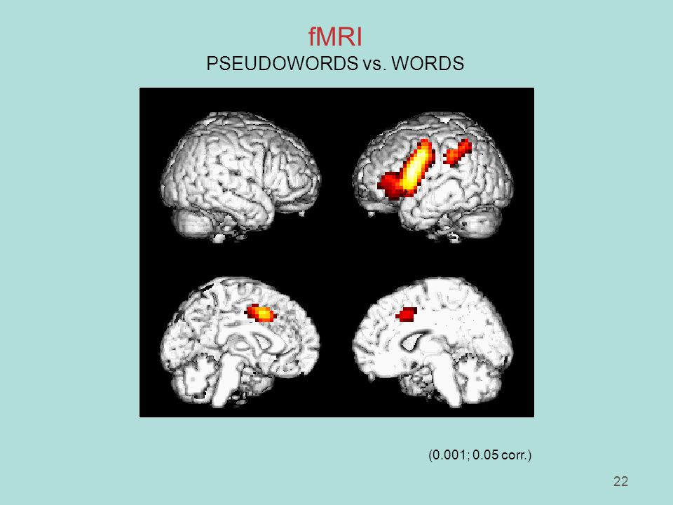 22 fMRI PSEUDOWORDS vs. WORDS (0.001; 0.05 corr.)