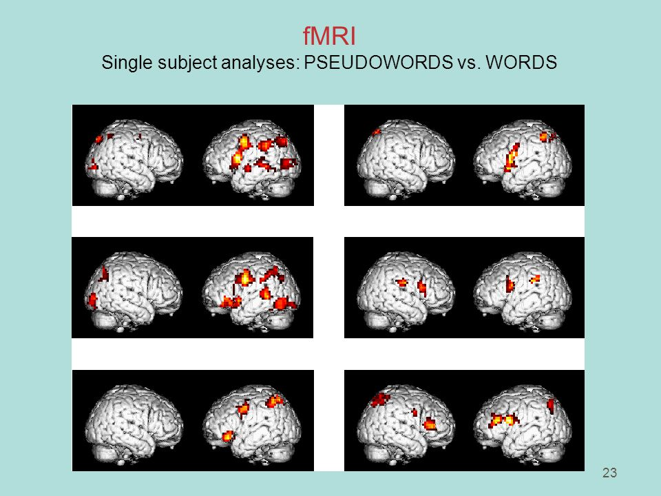 23 fMRI Single subject analyses: PSEUDOWORDS vs. WORDS