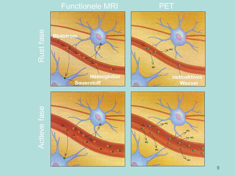 9 radioaktives Wasser Hämoglobin Sauerstoff Blutstrom Functionele MRIPET Actieve fase Rust fase