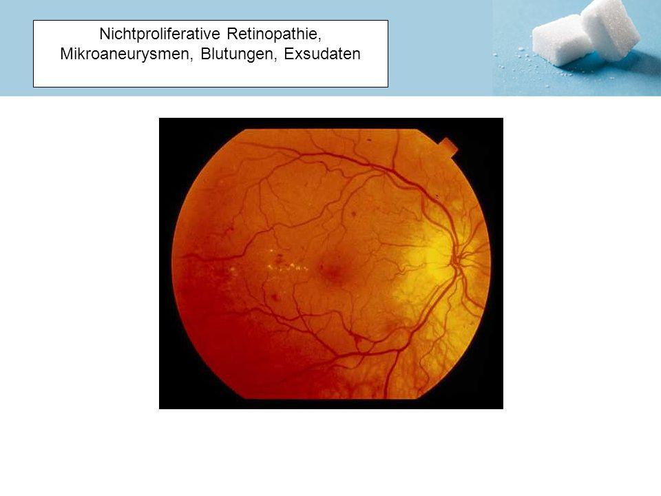 Nichtproliferative Retinopathie, Mikroaneurysmen, Blutungen, Exsudaten