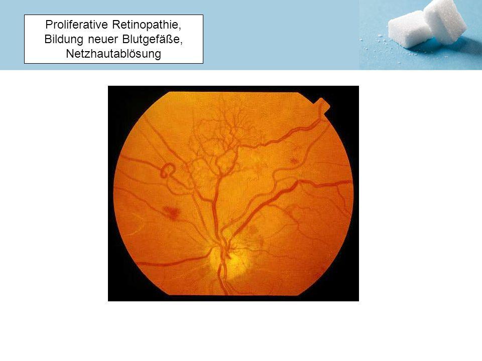 Proliferative Retinopathie, Bildung neuer Blutgefäße, Netzhautablösung