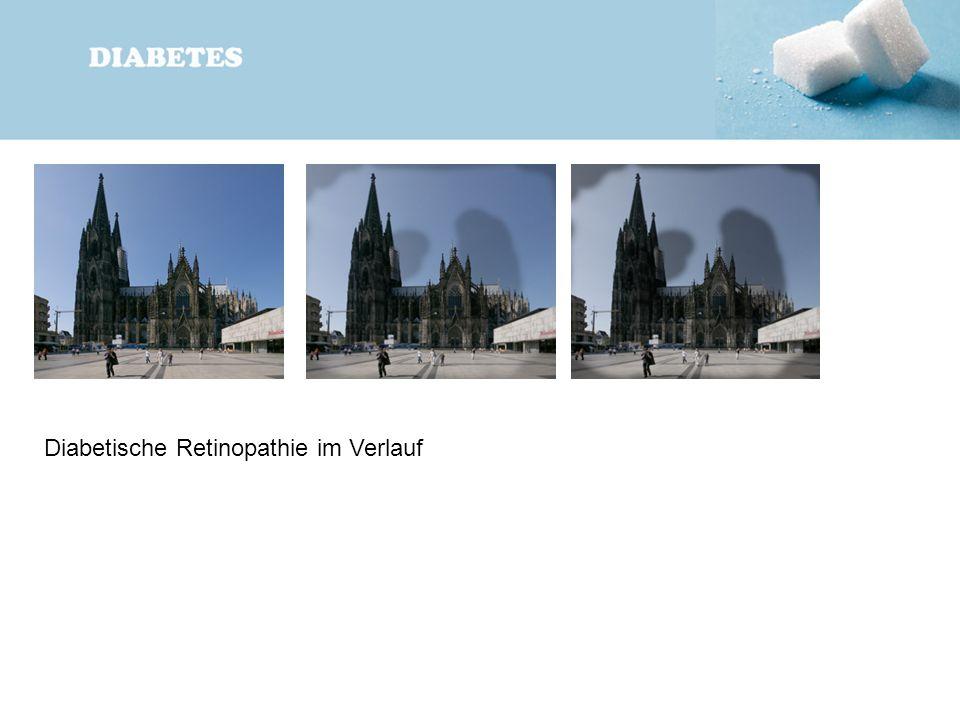 Diabetische Retinopathie im Verlauf