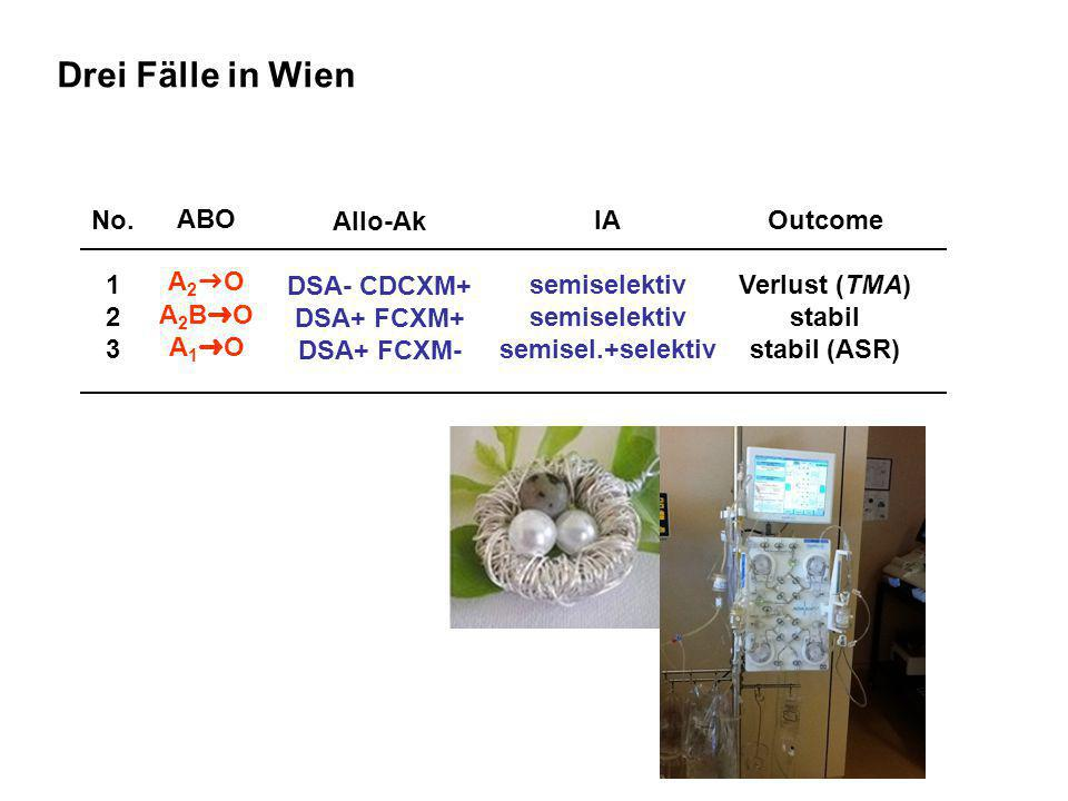 No. 1 2 3 Outcome Verlust (TMA) stabil stabil (ASR) ABO A 2 ➜ O A 2 B ➜ O A 1 ➜ O Allo-Ak DSA- CDCXM+ DSA+ FCXM+ DSA+ FCXM- Drei Fälle in Wien IA semi