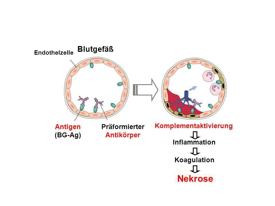 Endothelzelle Blutgefäß Antigen (BG-Ag) Präformierter Antikörper Komplementaktivierung Inflammation Koagulation Nekrose