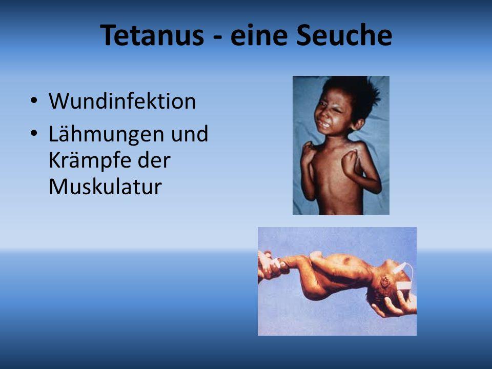 Tetanus - eine Seuche Wundinfektion Lähmungen und Krämpfe der Muskulatur