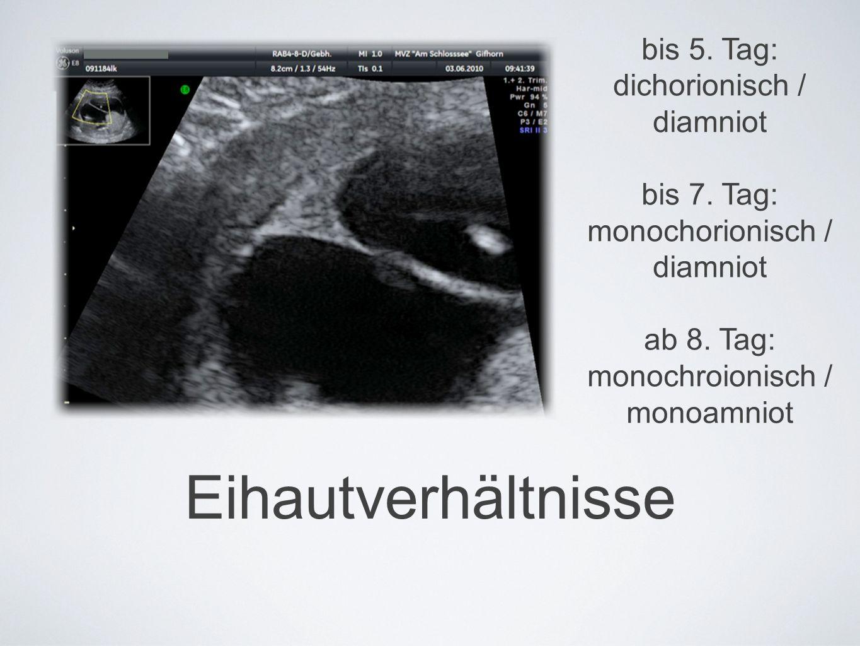 Eihautverhältnisse bis 5. Tag: dichorionisch / diamniot bis 7.