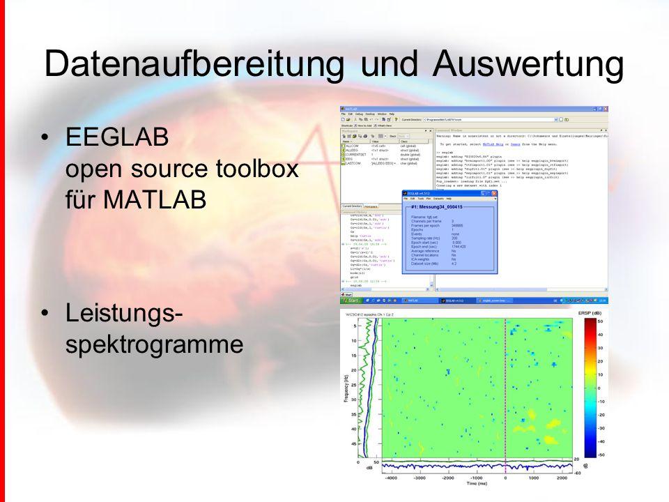 EEGLAB open source toolbox für MATLAB Leistungs- spektrogramme Datenaufbereitung und Auswertung
