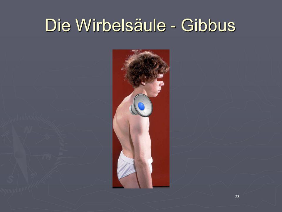 23 Die Wirbelsäule - Gibbus