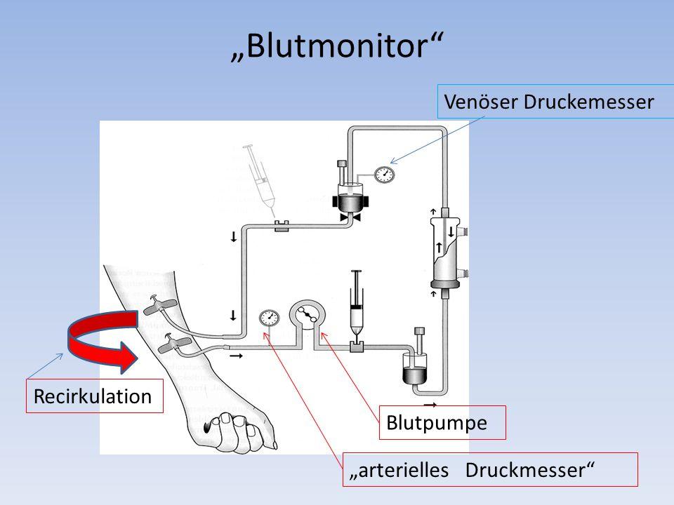 """Blutmonitor Blutpumpe ""arterielles Druckmesser Venöser Druckemesser Recirkulation"
