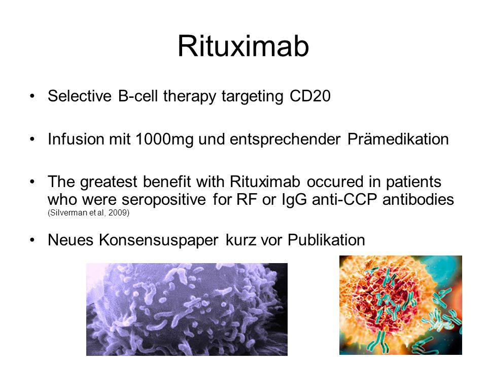 Rituximab Selective B-cell therapy targeting CD20 Infusion mit 1000mg und entsprechender Prämedikation The greatest benefit with Rituximab occured in patients who were seropositive for RF or IgG anti-CCP antibodies (Silverman et al, 2009) Neues Konsensuspaper kurz vor Publikation