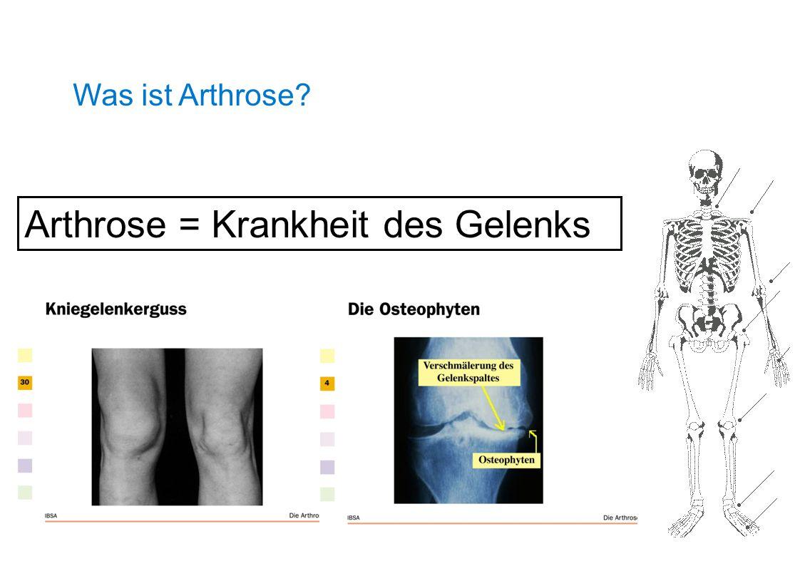 Was ist Arthrose? Arthrose = Krankheit des Gelenks